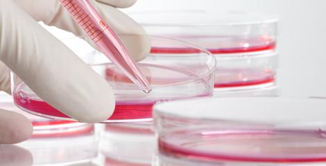 Nagelpilz im Nagelstudio getestet in einer Petrischale. Nagelpilz ist ansteckend! Nagelstudio und Naturnaegel mit Nagelpilz muessen getestet werden.